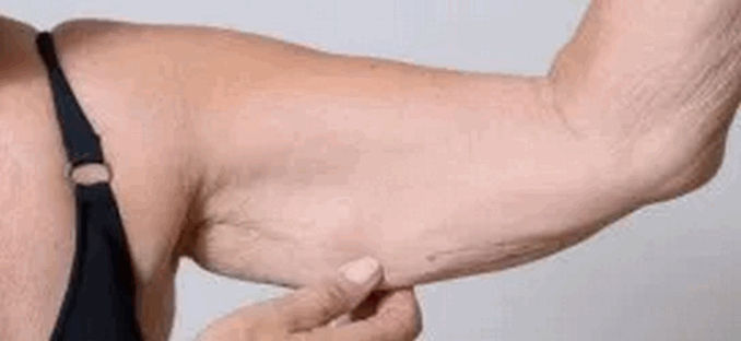 বয়সের কারণে কুঁচকে যাওয়া ত্বক টানটান করে তুলুন ৩টি উপায়